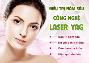Điều trị tăng sắc ở da bằng laser Q YAG